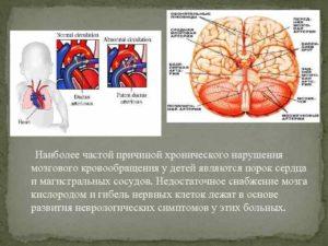 Нарушения мозгового кровообращения у детей