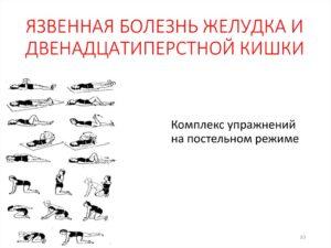Лечебная физкультура при язвенной болезни