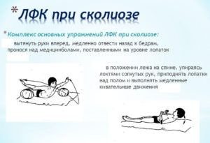 Применение лечебного массажа в комплексе ЛФК при сколиозе