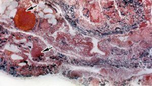 Острое гнойное воспаление серозных полостей – перитонит