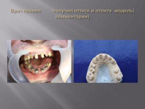 Клиническая картина и ортопедическое лечение при повышенной стираемости зубов