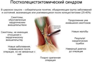 Лечебное питание при постхолецистэктомическом синдроме