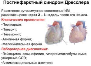 Синдром Дресслера