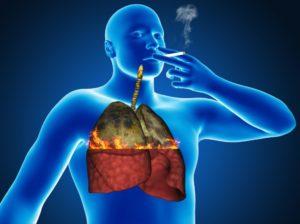 Токсическое поражение дыхательной системы
