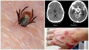Энцефалиты, болезнь Лайма